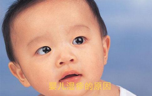 婴儿湿疹的原因