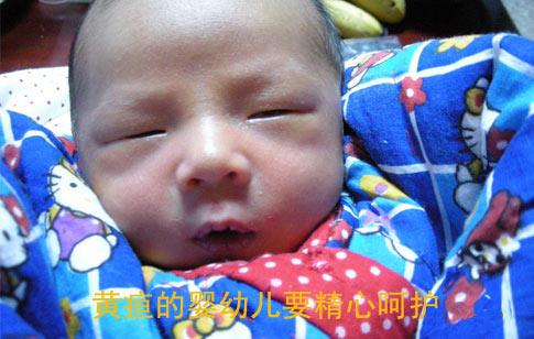 黄疸的婴幼儿要精心呵护