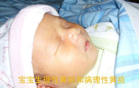 宝宝生理性黄疸和病理性黄疸