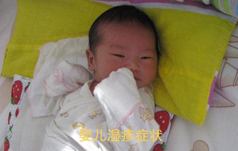 婴儿湿疹症状