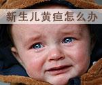 新生儿黄疸怎么办