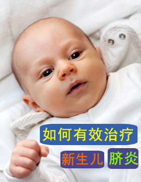 如何有效治疗新生儿脐炎
